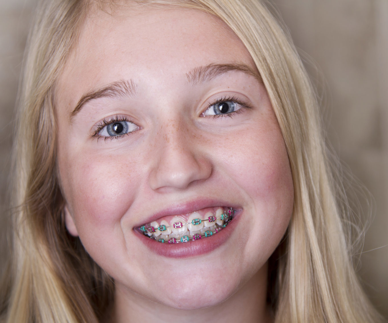 teen girl with multicolored braces on her teeth